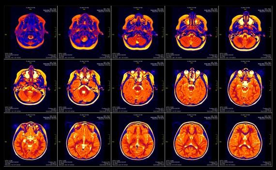 NIH_MRI-570x352
