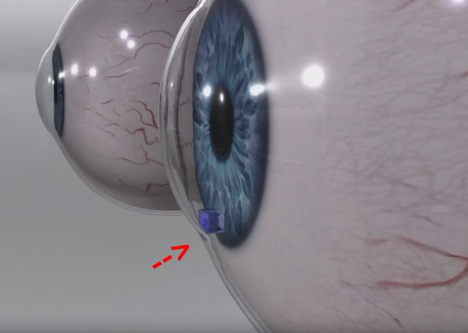 Device for early intervention against glaucoma